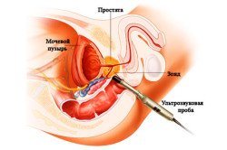 Лечение простаты электромагнитным прибором