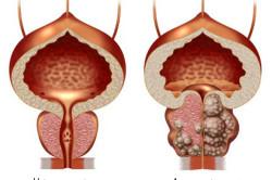 Нормальная простата и аденома
