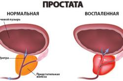 Схема воспаленной простаты