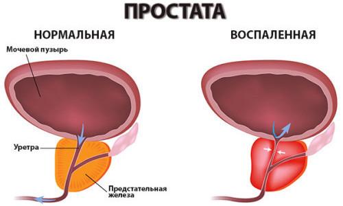 Схема нормальной и воспаленной простаты