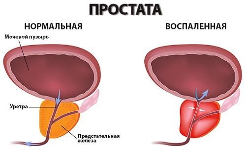 Схема здоровой и воспаленной простаты