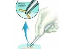 Иглы для проведения внутренней лучевой терапии