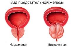 Предстательная железа в норме и при воспалении