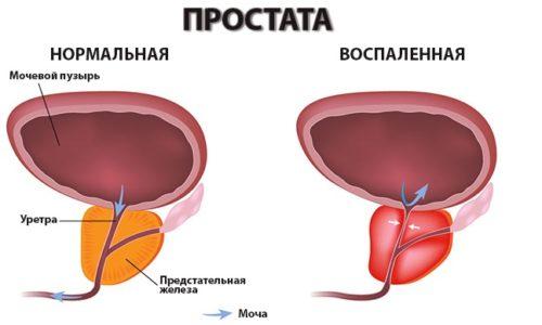Схема воспаления простаты
