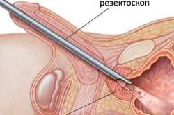 Резектоскопия при аденоме простаты
