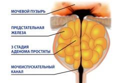3 стадия аденомы простаты