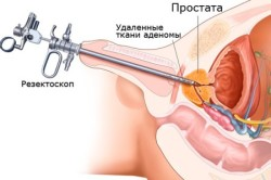Резекция предстательной железы