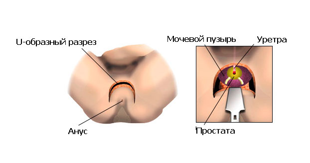 Причины сухого оргазма