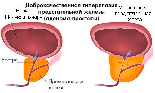 Хронический простатит с синдромом тазовой боли
