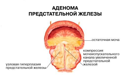 Когда при эрекции болит простата