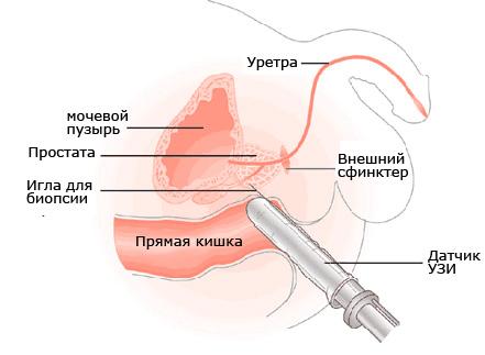 prostata-kak-bolit
