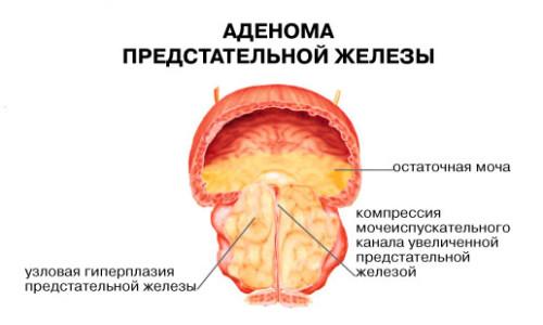 Аденома предстательной железы камни в мочевом пузыре