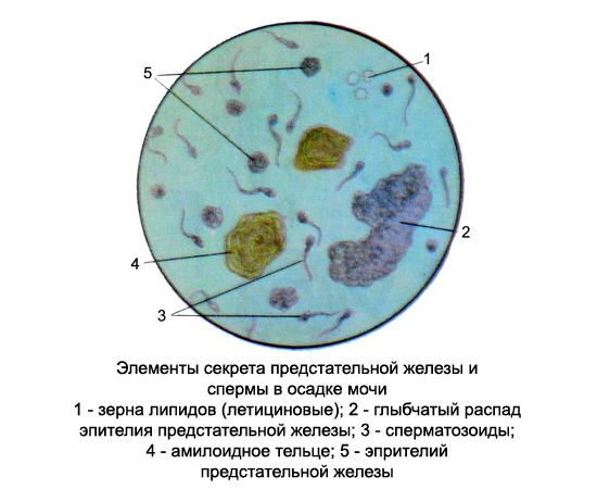 amiloidnie-teltsa-v-spermogramme