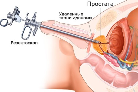 Лазерное лечение хронического простатита