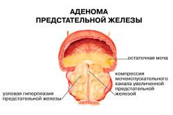 Схема аденомы предстательной железы