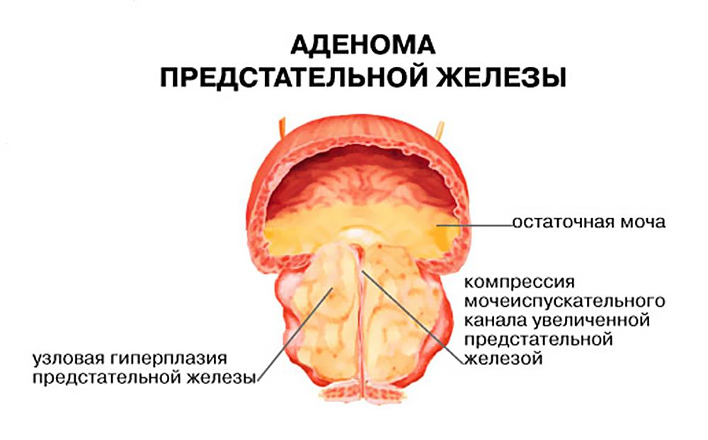 Как схематично сперма попадает в мочевой после тур операйии аленомы
